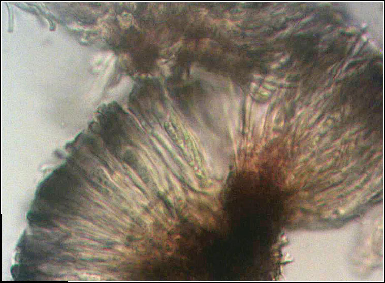 Toninia sedifolia, microscope photo