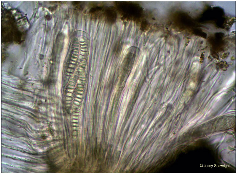 Graphis elegans, microscope photo